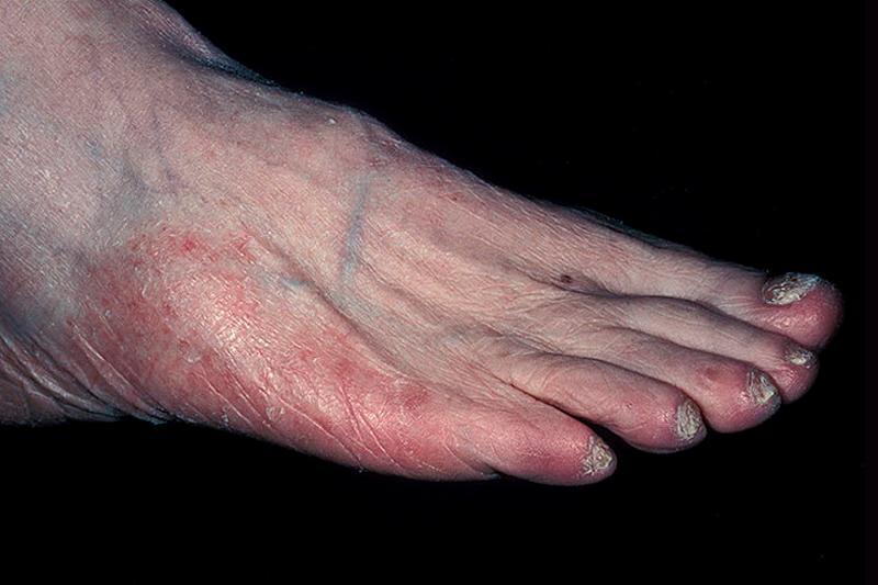 Паховая эпидермофития. паховый грибок. симптомы. лечение. фото