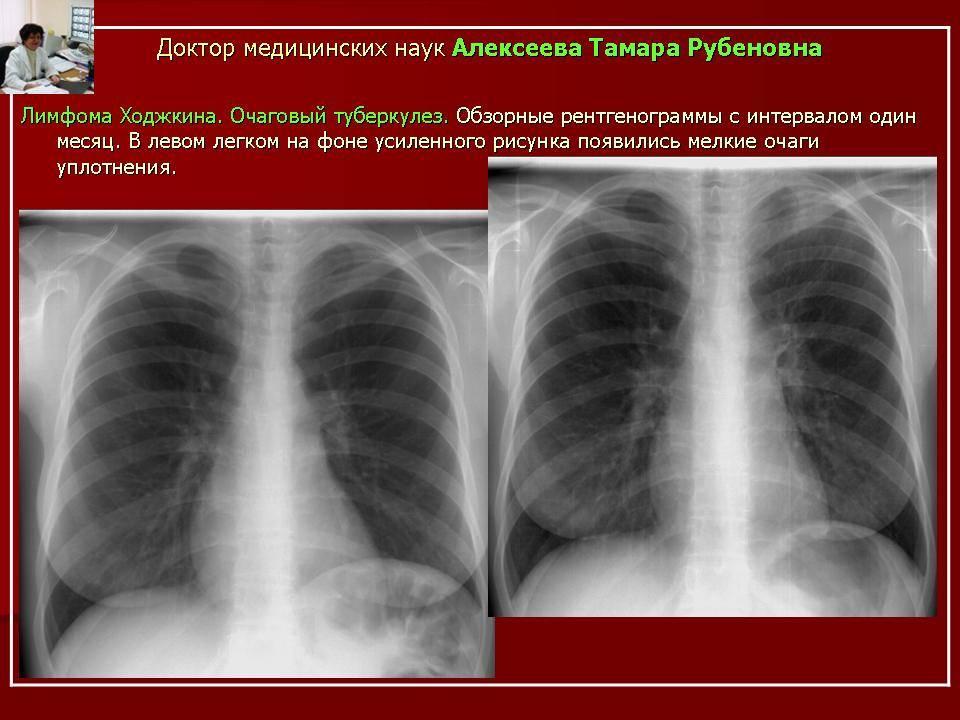 Что такое очаговый туберкулез легких, каковы пути его передачи и методы лечения?