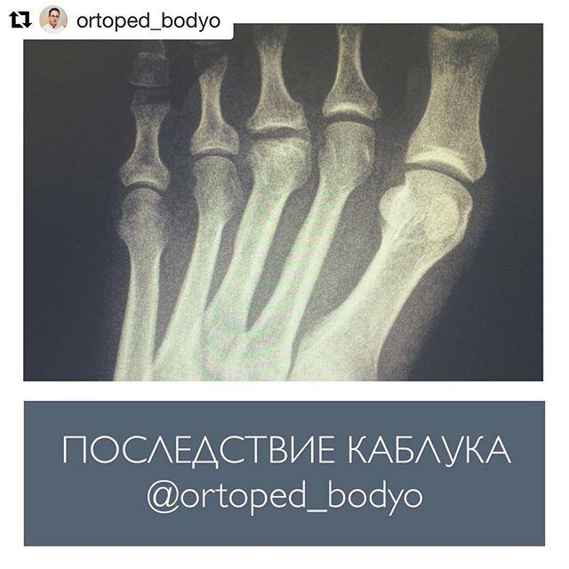 Остеохондропатия ладьевидной кости на стопе