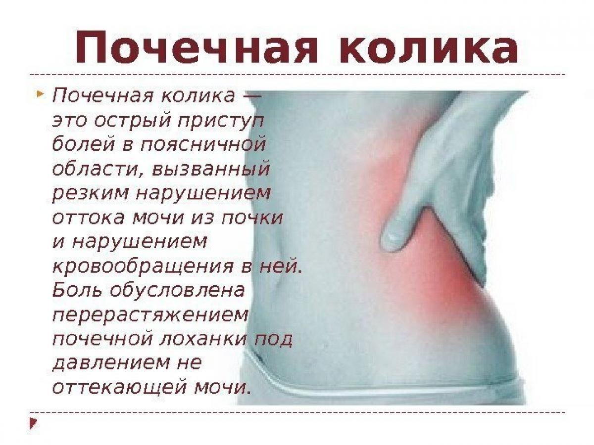 Почечные колики как снять боль   советы доктора