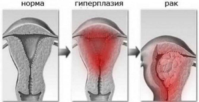 Что такое гиперплазия - определение, описание, причины и лечение