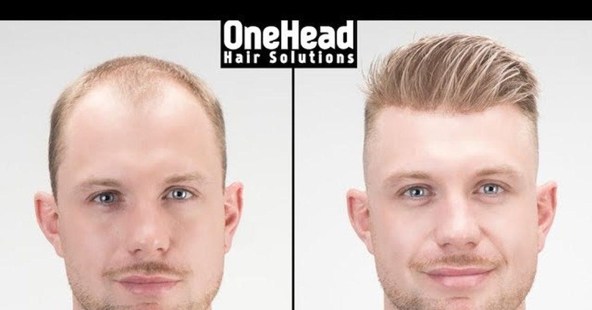 Причины облысения, и как спасти свои волосы