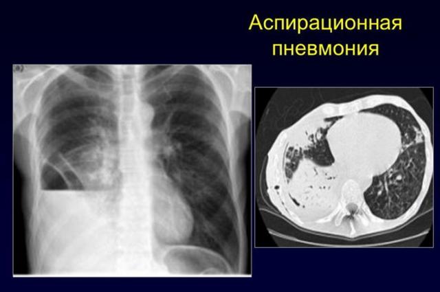 От чего может быть пневмония у новорожденных? причины и возможные последствия