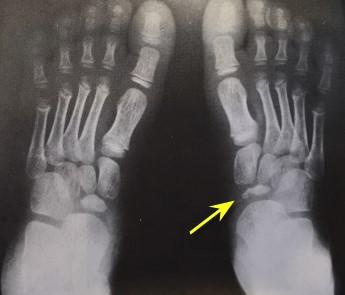 Остеохондропатия плюсневой кости: причины, симптомы, лечение