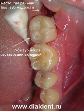 Как происходит удаление зуба мудрости