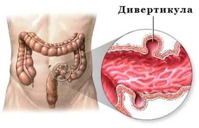 Симптомы и препараты для лечения воспаления сигмовидной кишки