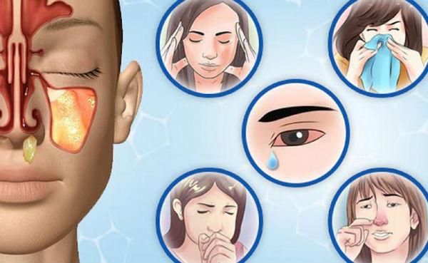 Диоксидин инструкция по применению в ампулах детей. можно ли капать диоксидин в нос при насморке: обзор инструкции, лечебной практики и отзывов