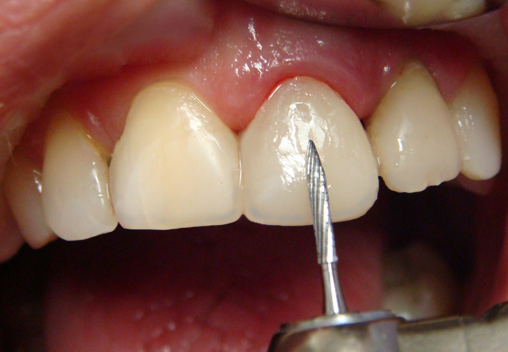 Факторы влияющие на цвет зубов