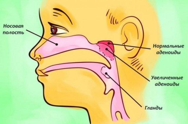 Воспаление миндалин в горле симптомы