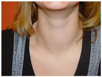 Аллопуринол при подагре - курс лечения и продолжительность, дозировка и противопоказания