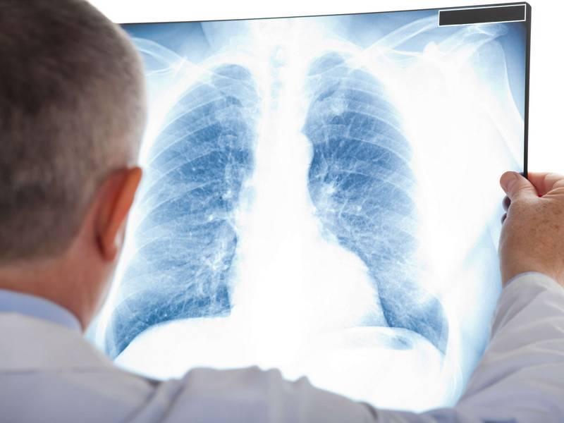 Как проходит лечение туберкулёза в стационаре