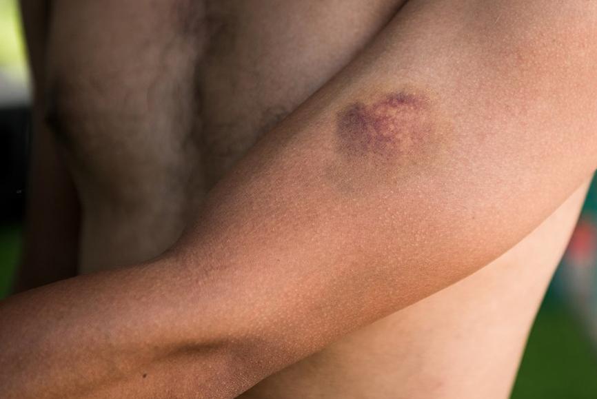 Что делать если гематома не рассасывается