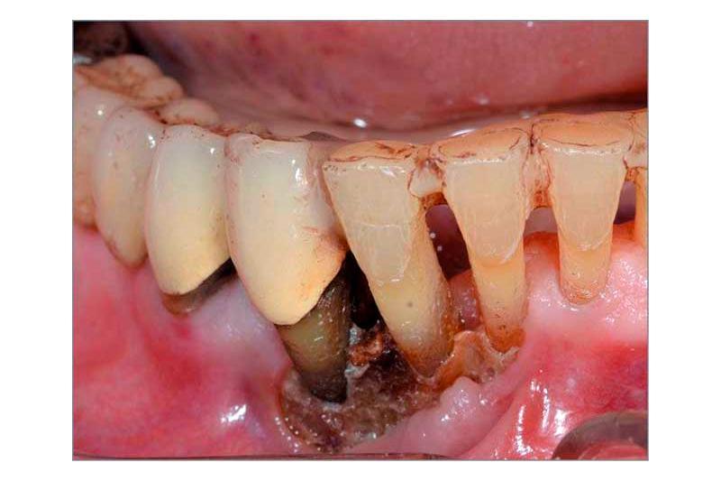 Остеомиелит челюсти, классификация, симптомы и лечение