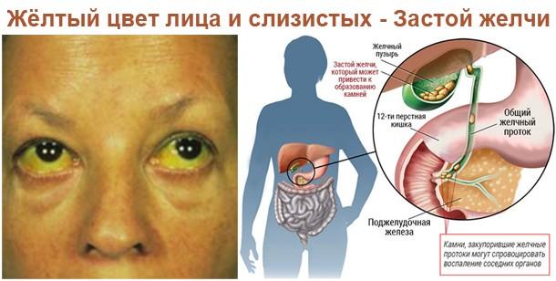 Удаление желчного пузыря как крайняя мера при лечении холестаза