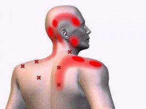 Лучшие упражнения при шейном остеохондрозе: самые эффективные и простые комплексы лфк