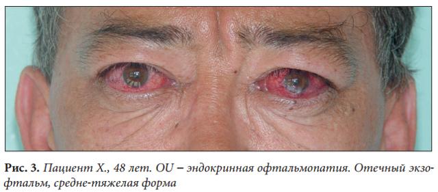 Экзофтальм: причины, симптомы и лечение