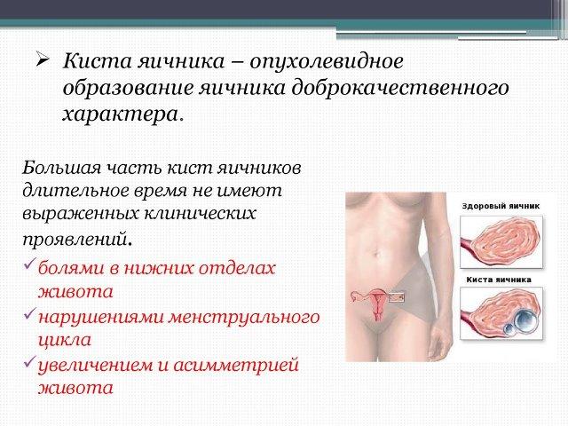 Функциональная киста яичника: симптомы и лечение