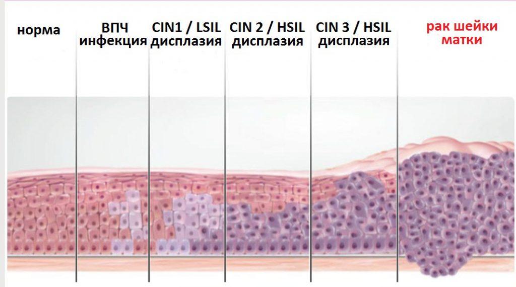 Дисплазия шейки матки 2 степени