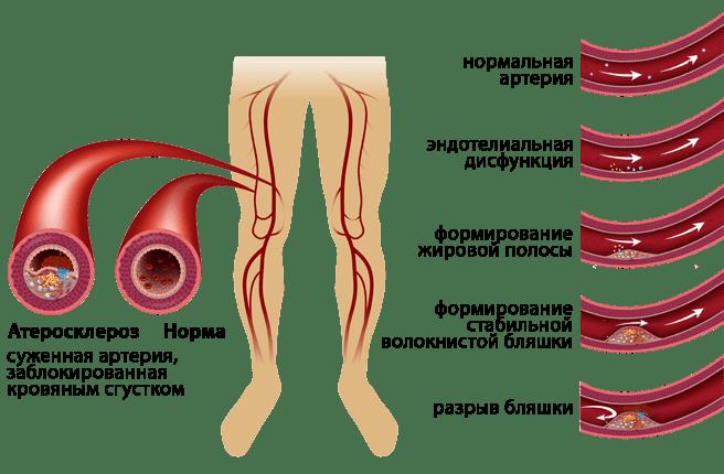 Симптомы и лечение облитерирующего эндартериита сосудов ног