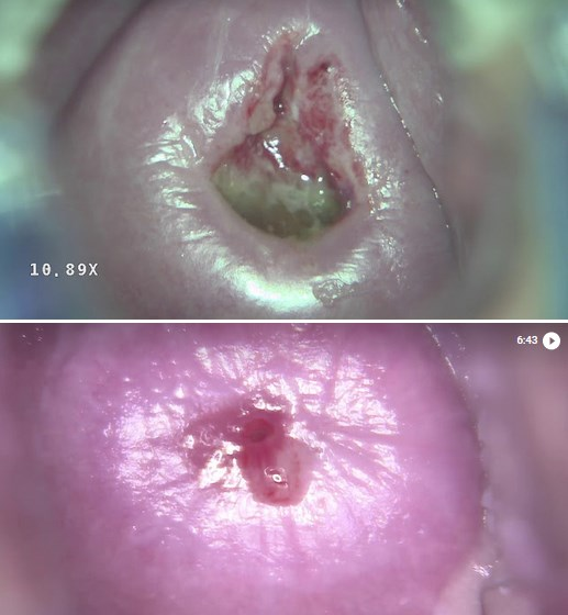 Дисплазия шейки матки — степени развития заболевания и методы лечения