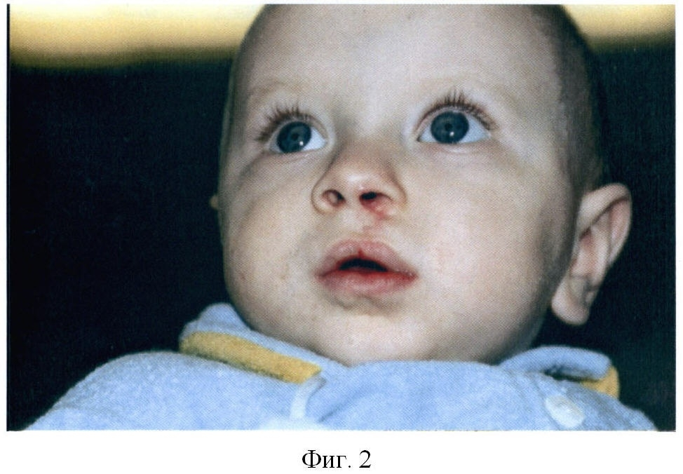 Причины возникновения заячьей губы у новорожденных
