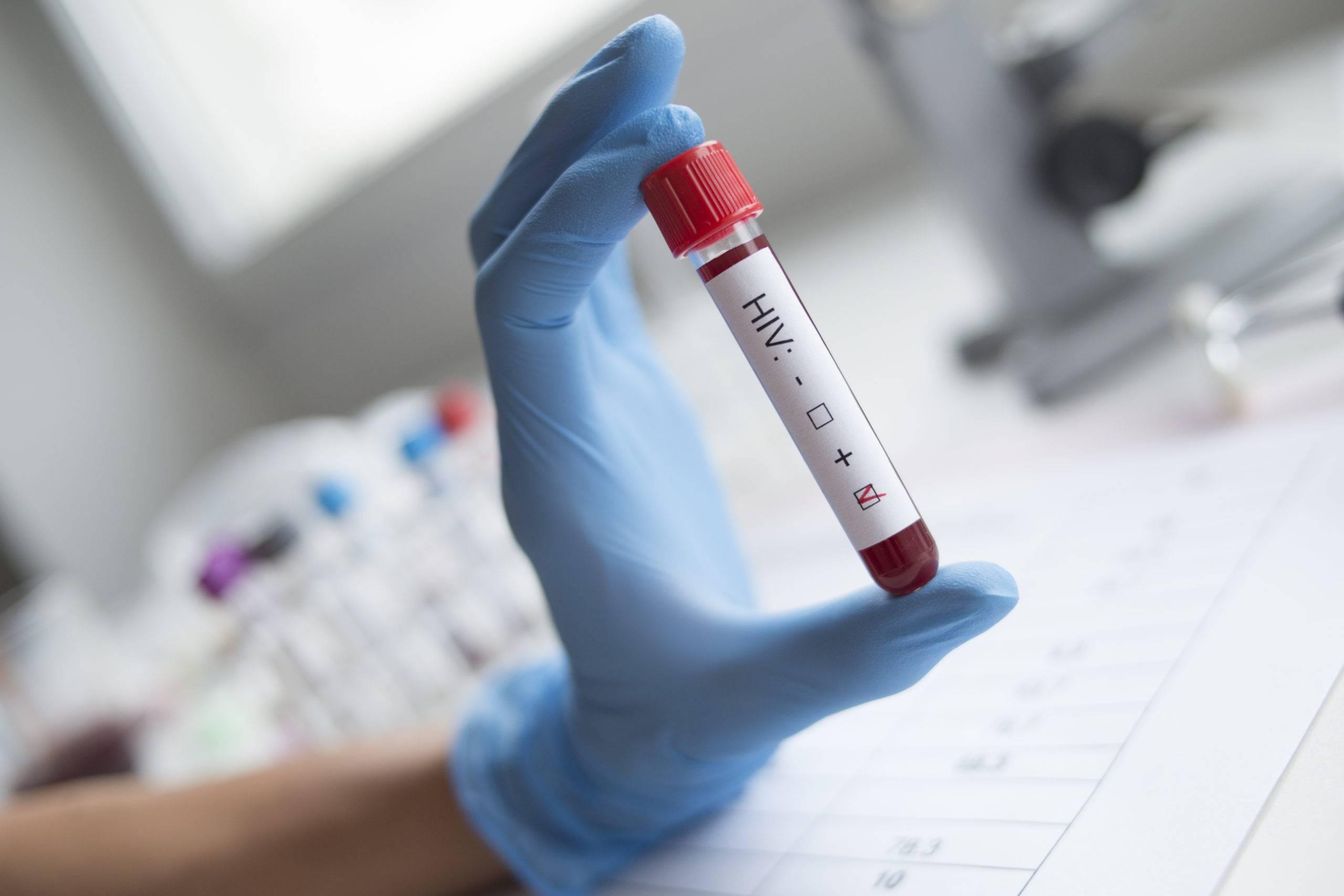 Как проводится анализ на определение суммарных антител к микобактериям туберкулеза