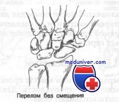 Факторы возникновения перелома лучевой кости