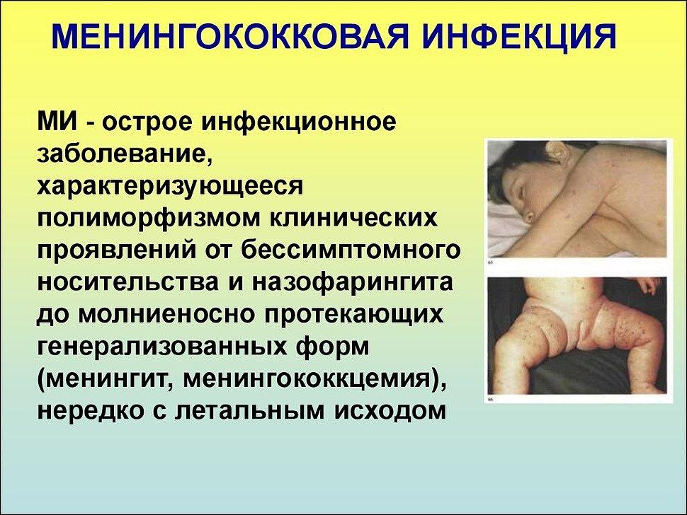 Менингококковая инфекция у детей - симптомы, лечение, фото, профилактика, признаки