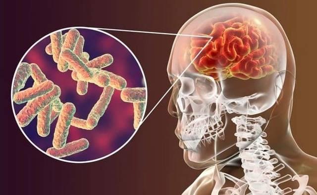 Что такое туберкулез позвоночника заразен ли он