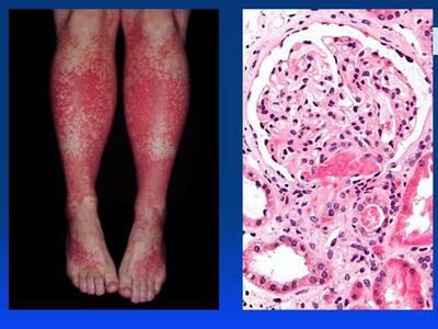 Геморрагический васкулит у детей: от симптомов до лечения