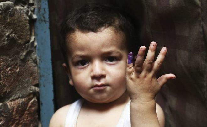 Полиомиелит и детсад - запись пользователя яна (id766125) в сообществе мы против прививок! в категории полиомиелит - babyblog.ru