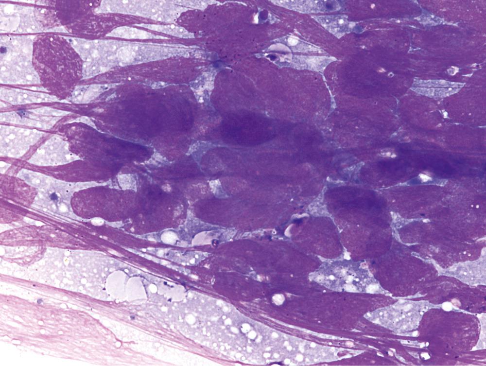 Плоскоклеточный рак бронхов