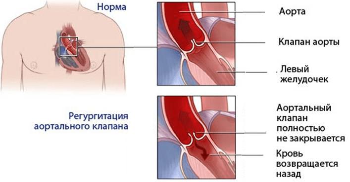 Особенности регургитации трискупидального клапана 1 степени