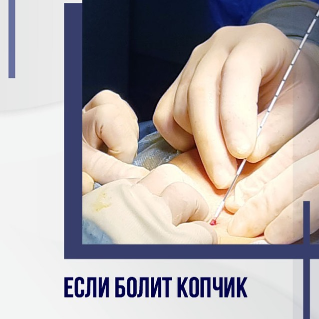 Боль в копчике или в области копчика - причины, характеристика, методы лечения