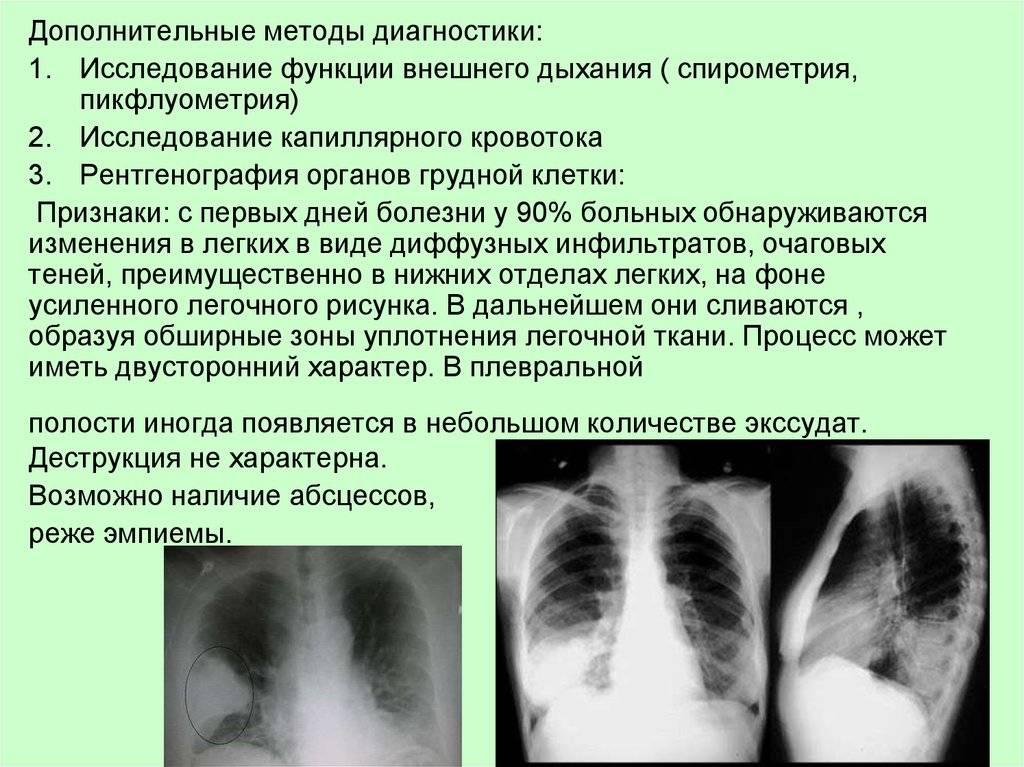 Очаговая пневмония