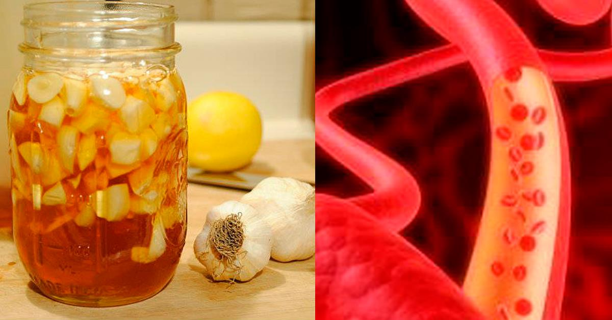 Какие продукты питания лучше всего чистят кровеносные сосуды