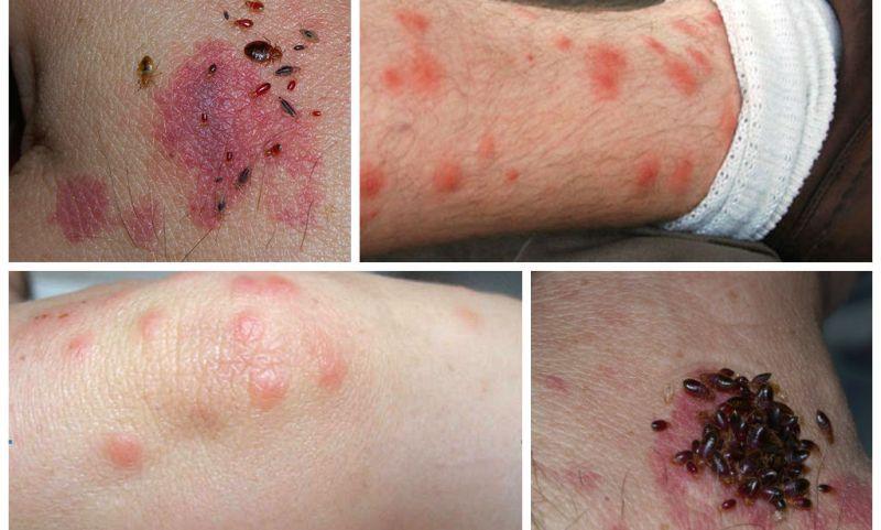 Следы от укусов клопов, как избавиться от укусов клопов на теле