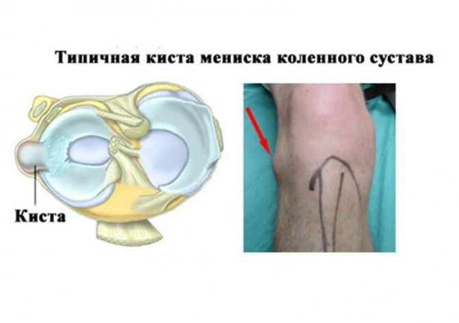 Аллергия в виде шишек на теле