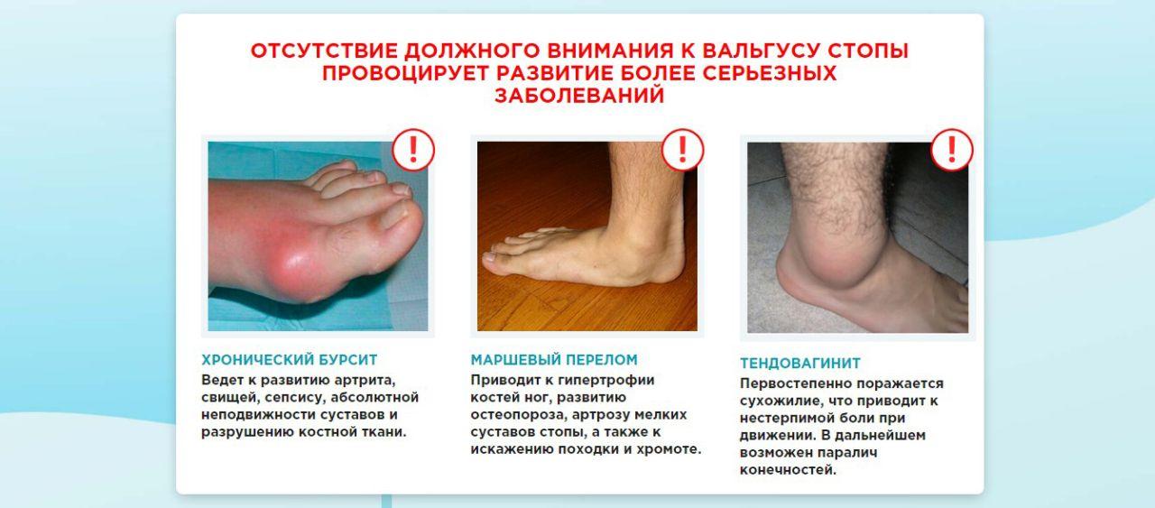 Orthofix (ортофикс) — комплекс двойного действия от вальгуса и выпирающей косточки на ноге возле большого пальца стопы