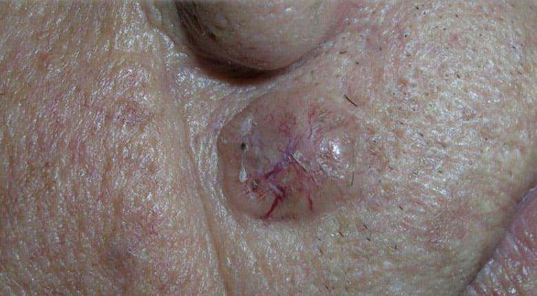 Базалиома кожи носа — причины, лечение, виды