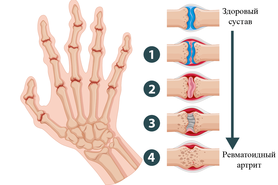Артрит пальцев рук и кистей