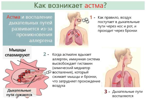 Бронхиальная астма: причины, симптомы, лечение
