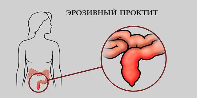 Проктит – причины, симптомы, диагностика и лечение. основные формы проктита – эрозивный, катаральный, язвенный. :: polismed.com