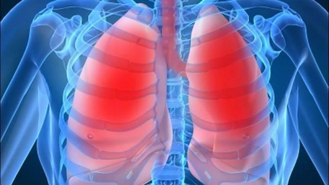 Бронхиальная астма. причины, симптомы, современная диагностика и эффективное лечение