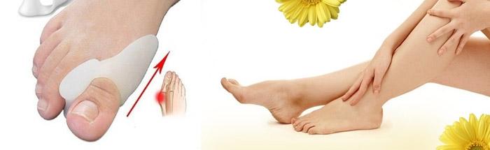 Как используются фиксаторы для косточек на ногах?