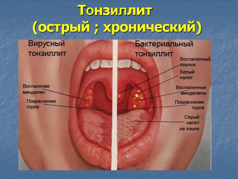 Воспаление гланд: причины, симптомы. методы лечения воспаления гланд: консервативные, оперативные