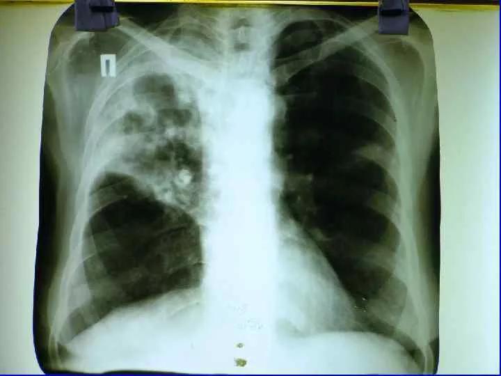 Кашель бывает при закрытой форме туберкулеза