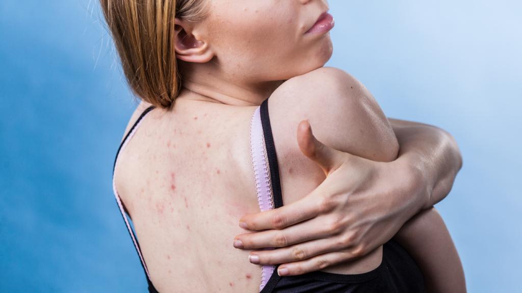 Инфекции, клещи и еще 3 веские причины, почему нужно регулярно стирать постельное белье