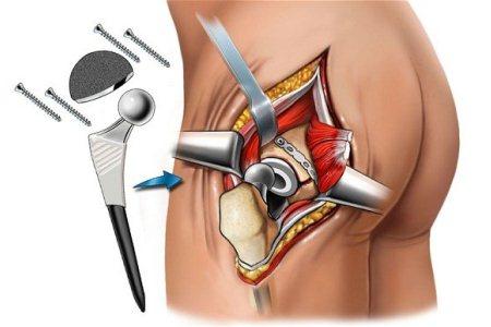 Отек после эндопротезирования тазобедренного и коленного сустава: как убрать
