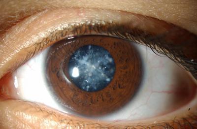 Каталин глазные капли – инструкция, цена, отзывы и аналоги